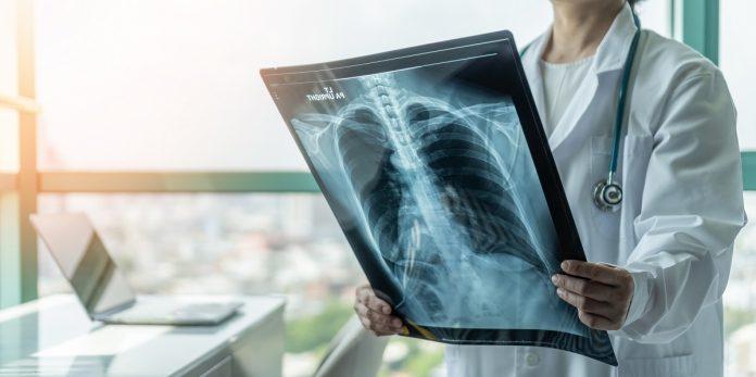 Détresse respiratoire aiguë : docteur