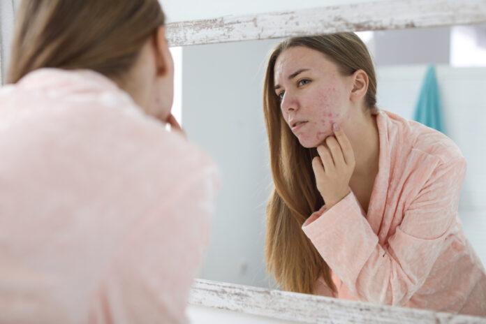 Traitements de l'acné pendant la grossesse