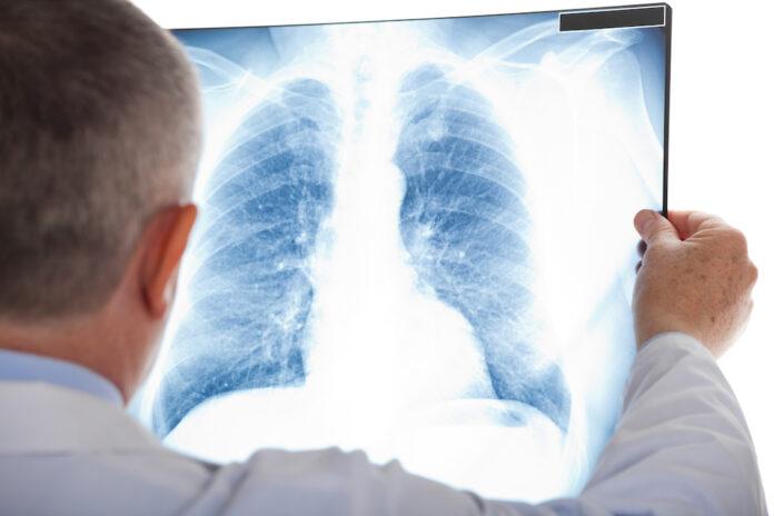 Patient Covid-19 : première greffe pulmonaire