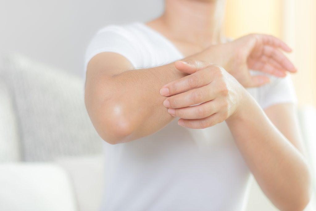 Eczéma de contact  : psoriasis