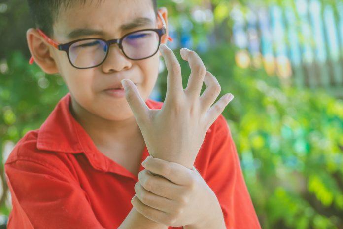 Maladies rares : zoom sur l'arthrite juvénile idiopathique