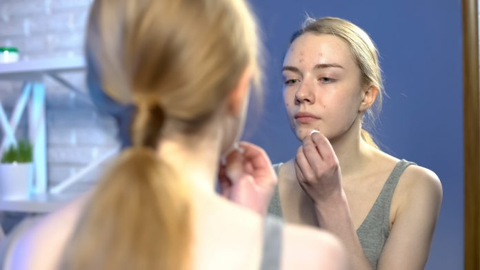 Alerte-ANSM-Grossesse-acné-isotrétinoïne
