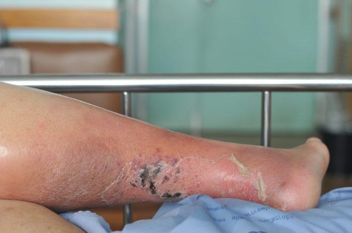 Ulcère veineux : femme à l'hopital