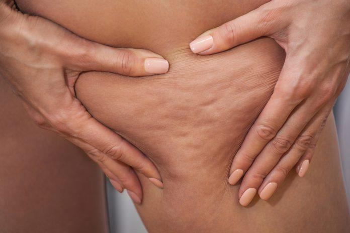 Cellulite : comment la faire disparaître ?