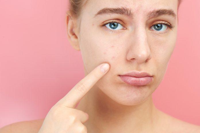 Bien-être : Top 5 des idées reçues sur l'acné