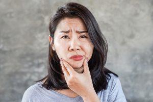 Paralysie faciale périphérique